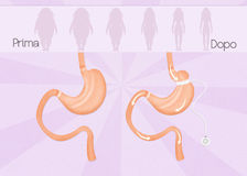Before and after gastric band surgery. Illustration of before and after gastric band surgery Royalty Free Stock Image