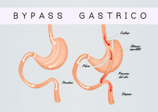 Gastric bypass. Illustration of gastric bypass scheme Royalty Free Stock Photo
