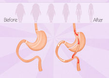 Before and after gastric bypass. Illustration of before and after gastric bypass surgery Stock Photos