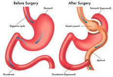 Gastric bypass. Medical illustration of a gastric bypass surgery Royalty Free Stock Photos