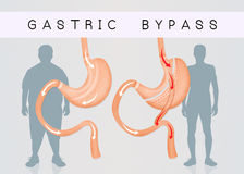 Before and after gastric bypass surgery. Illustration of before and after gastric bypass Stock Photo