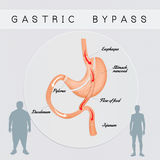 Gastric bypass surgery Stock Image