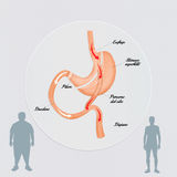 Gastric bypass surgery Stock Photo