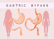 Gastric bypass to reduce stomach Stock Photos