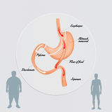 Gastric bypass to reduce stomach Royalty Free Stock Photography