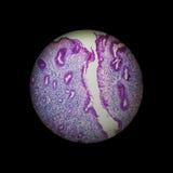 Gastritis crónica Fotos de archivo