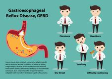 Gastro-Esophageal Reflux Disease GERD. Businessman suffering from stomach painful or Acid Reflux or Heartburn, Gas, Bloating, Belching and flatulence. Caused by royalty free illustration