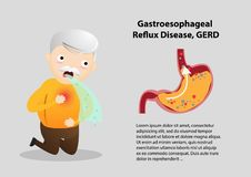 Gastro-Esophageal Reflux Disease GERD. Old man suffering from stomach painful or Acid Reflux or Heartburn, Gas, Bloating, Belching and flatulence. Caused by stock illustration