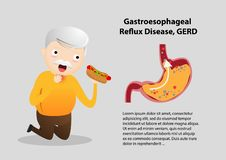 Gastro-Esophageal Reflux Disease GERD. Old man suffering from stomach painful or Acid Reflux or Heartburn, Gas, Bloating, Belching and flatulence. Caused by vector illustration