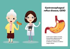 Gastro-Esophageal Reflux Disease GERD. Senior suffering from stomach painful or Acid Reflux or Heartburn, Gas, Bloating, Belching and flatulence. Caused by royalty free illustration