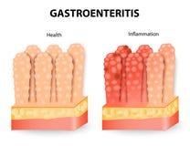 Gastroenteritis o diarrea infecciosa stock de ilustración