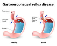Gastroesophageal Rückfluss-Krankheit Lizenzfreies Stockbild