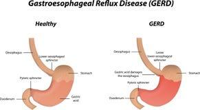 Free Gastroesophageal Reflux Disease Royalty Free Stock Image - 45060956
