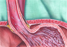 Gastroesophageal Reflux Disease. (GERD), caused when the lower esophageal sphincter (LES) does not close properly, and stomach contents leak back (reflux) into Stock Photography