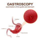 Gastroscopy procedure EGD Stock Photo