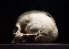 Gat in de schedel royalty-vrije stock foto