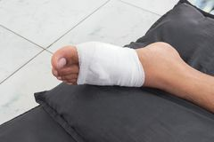 Gauze bandage the foot treating patients Foot injury with bandage. Gauze bandage the foot,treating patients with foot ulcers,male is wrapping his Foot injury Stock Photo