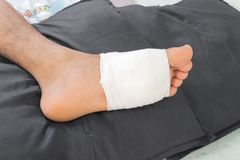 Gauze bandage the foot treating patients Foot injury with bandage. Gauze bandage the foot,treating patients with foot ulcers,male is wrapping his Foot injury Royalty Free Stock Images
