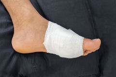 Gauze bandage the foot, treating patients with foot ulcers, male is wrapping his Foot injury. Gauze bandage the foot,treating patients with foot ulcers,male is Royalty Free Stock Photography