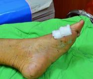 Gauze dressing wound. Royalty Free Stock Image
