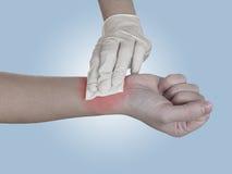 Gaze de pressurage à la main sur le bras après administration d'une injection. Photographie stock libre de droits