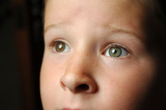 Gazing Eyes. My son with two different coloured eyes Royalty Free Stock Photos