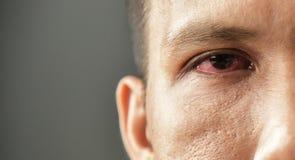 Geïrriteerd rood bloeddoorlopen mannelijk oog stock afbeelding