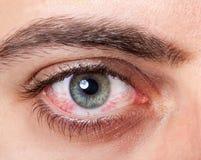Geïrriteerd rood bloeddoorlopen oog stock foto's