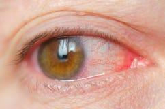 Geïrriteerde de close-up besmette rode bloeddoorlopen ogen, bindvliesontsteking stock fotografie