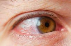Geïrriteerde de close-up besmette rode bloeddoorlopen ogen, bindvliesontsteking royalty-vrije stock fotografie