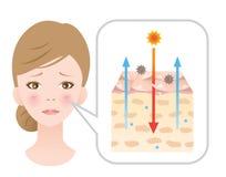 Gealterte Haut haben Diagrammillustration weniger Ceramides woman's Schönheit und Hautpflegekonzept stock abbildung