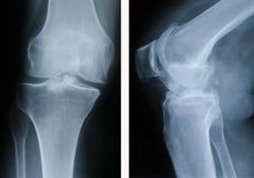 Geavanceerd osteoartritis stock foto