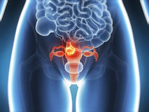 Gebärmutterkrebs Lizenzfreies Stockfoto