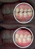 Gebissanomalie nach und vor Zahnregulierungen lizenzfreies stockbild