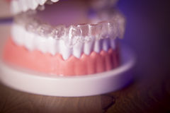 Gebit met transparante orthodontie stock foto's