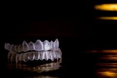Gebit onzichtbare orthodontie Stock Afbeeldingen