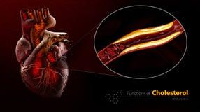 Geblokkeerd bloedvat, slagader met cholesterolopbouw, Illustratie geïsoleerde zwarte royalty-vrije illustratie