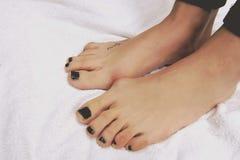Geboren voet healt zieke pijn Royalty-vrije Stock Afbeeldingen