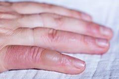 Gebrande hand Blaar op uw vinger stock afbeelding