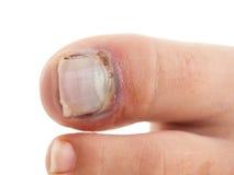 Gebrochene große Zehe mit Nageltrennung Stockbilder