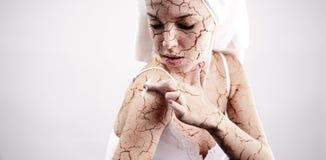 Gebrochene Hautbehandlung Stockfotos