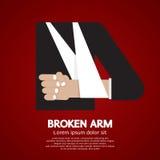 Gebrochener Arm Stockfotos