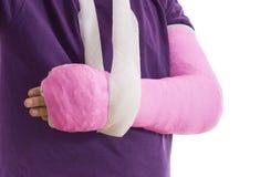 Gebrochener Arm im rosa Gipsabdruck und im Riemen stockfoto