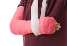 Gebrochener Arm im roten Gipsabdruck und im Riemen lizenzfreie stockbilder