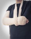 Gebrochener Arm im weißen Gipsabdruck und im Riemen lizenzfreie stockbilder