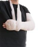 Gebrochener Arm im weißen Gipsabdruck und im Riemen lizenzfreie stockfotos