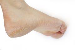 Gebrochener Fuß Lizenzfreies Stockbild