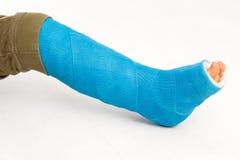 Gebroken menselijk been in gegoten - kind en jongen Stock Foto's