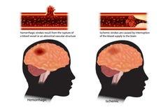 Geclassificeerde slagen: ischemisch en hemorrhagic vector illustratie