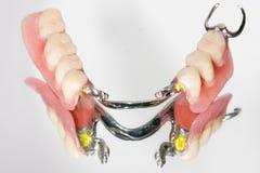 Gedeeltelijke prothese stock fotografie